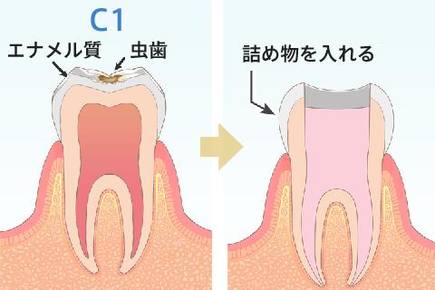 画像 虫歯 初期